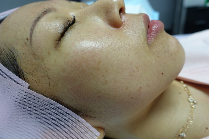 skinboosters-singapore-after