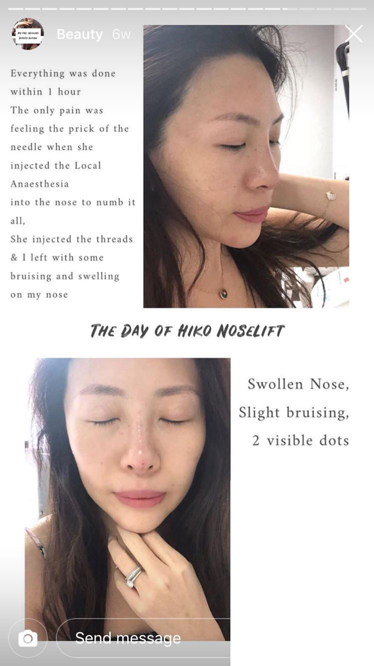 Dr Rachel Ho | Hiko Nose Threadlift: All You Need to Know