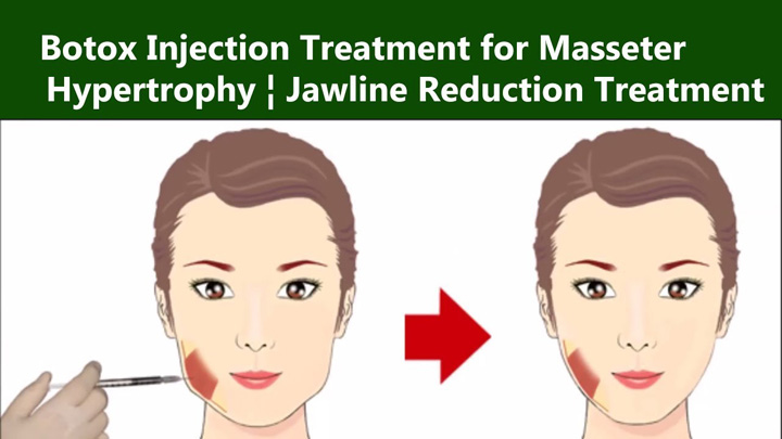 jaw botox for masseter hypertrophy
